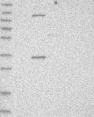 NBP1-88323 - AIDA