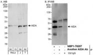NBP1-78207 - AIDA