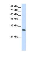 NBP1-58961 - SCYE1 / EMAP2