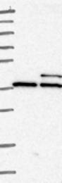 NBP1-81574 - JTV1 / AIMP2