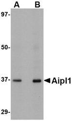 NBP1-76953 - AIPL1