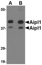 NBP1-76956 - AIPL1