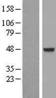 NBL1-07416 - AIPL1 Lysate