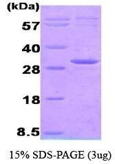 NBC1-18396 - Adenylate kinase 3 (AK3)