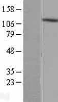 NBL1-07424 - AKAP1 Lysate