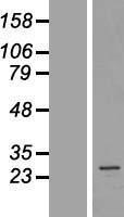 NBL1-07427 - AKAP14 Lysate