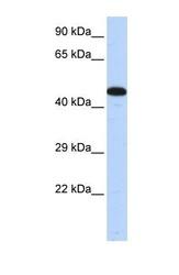 NBP1-54807 - AKAP5