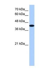 NBP1-53116 - AKAP7 gamma