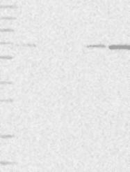 NBP1-89162 - AKD2 / C6orf199