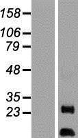 NBL1-07859 - AKIP Lysate