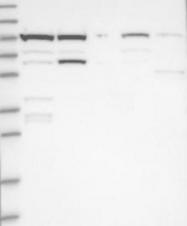 NBP1-90703 - AKNAD1