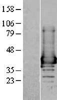 NBL1-07432 - AKR1A1 Lysate