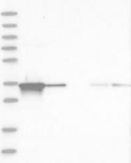 NBP1-89146 - AKR1B1 / ALDR1