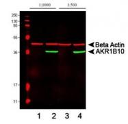NBP1-44998 - AKR1B10