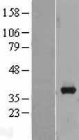 NBL1-07434 - AKR1B10 Lysate
