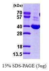 NBP1-41223 - AKR1C1 / DHH1