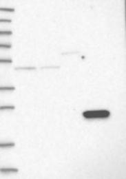 NBP1-90195 - AKR1CL2 / AKRDC1