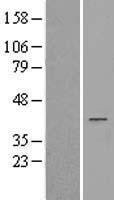 NBL1-07438 - AKR1D1 Lysate