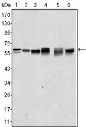 NBP1-51603 - AKT2 / PKB beta