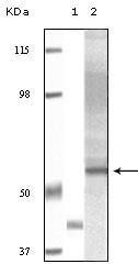 NBP1-51534 - AKT3 / PKB gamma