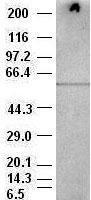 NBP1-47657 - AKT3 / PKB gamma