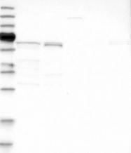 NBP1-80900 - AKT3 / PKB gamma