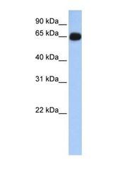 NBP1-54668 - ALAS1