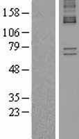 NBL1-07446 - ALAS1 Lysate
