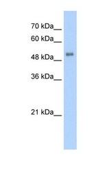 NBP1-54728 - ALAS2