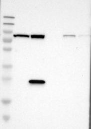 NBP1-83324 - ALDH18A1