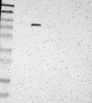 NBP1-83325 - ALDH18A1