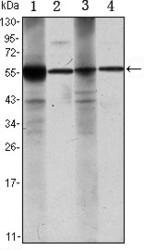 NBP1-51654 - ALDH1