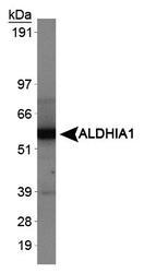 31160002 - ALDH1