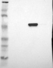 NBP1-89152 - ALDH1