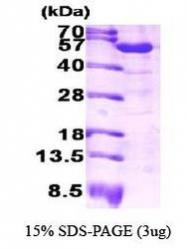NBP1-30263 - ALDH1