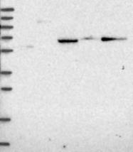 NBP1-91657 - ALDH1A3 / ALDH6