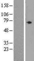 NBL1-07453 - ALDH1A3 Lysate