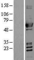 NBL1-07454 - ALDH2 Lysate