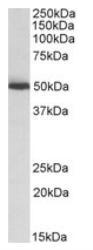 NBP1-52051 - ALDH2
