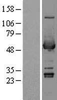 NBL1-07455 - ALDH3A1 Lysate