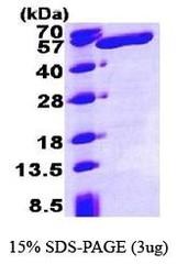NBP1-37091 - ALDH3