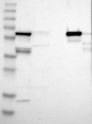NBP1-89149 - ALDH4