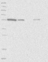 NBP1-86996 - ALDH5A1 / SSADH