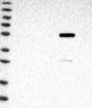 NBP1-89151 - ALDH8A1 / ALDH12