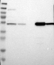 NBP1-89150 - ALDH9A1 / ALDH9