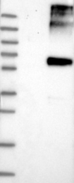 NBP1-90191 - ALG9 / DIBD1