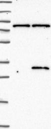 NBP1-81231 - ALKBH7 / SPATA11