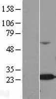 NBL1-07477 - ALKBH7 Lysate