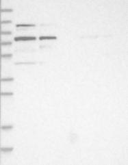 NBP1-91661 - ALOXE3