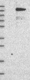 NBP1-83594 - Alpha-protein kinase 1